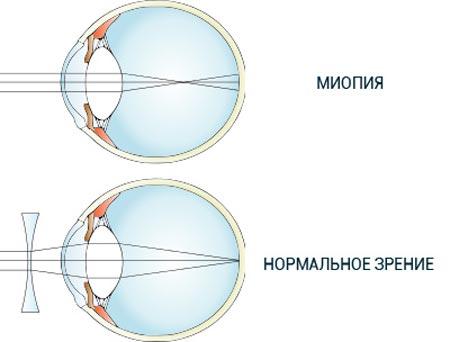 Нормальное зрение и миопия