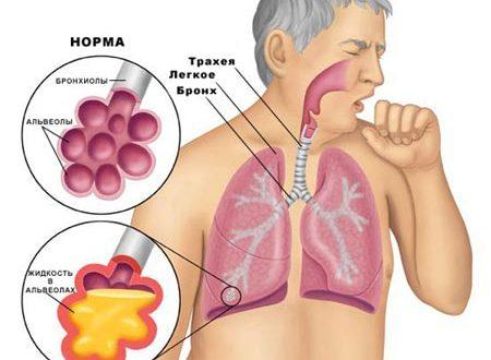 Симптомы и лечение воспаления легких