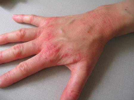 Симптомы нейродермита