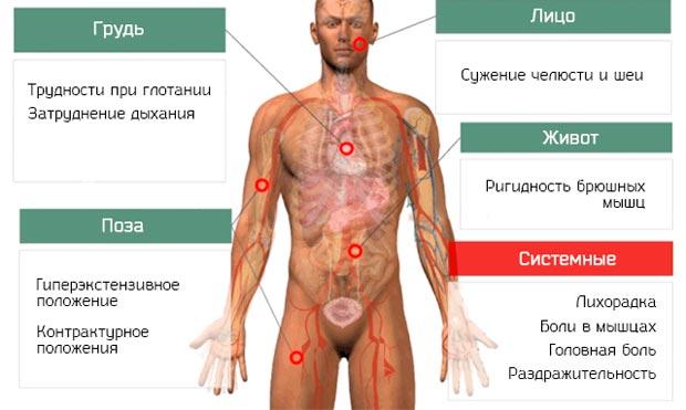 Симптомы стоблняка