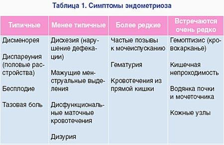 Симптомы эндометриоза