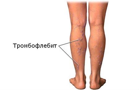 Тромбофлебит нижних конечностей: симптомы, лечение тромбоза ...