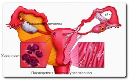 Последствия болезни уреаплазмоз