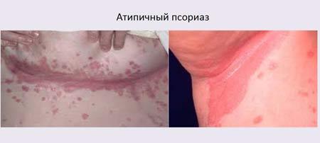 Атипичный псориаз