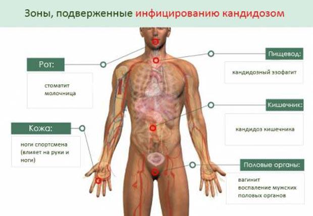 Зоны, подверженные инфицированию кандидозом