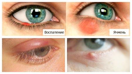 Симптомы ячменя на глазах