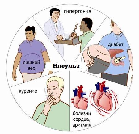 Факторы, которые провоцируют инсульт