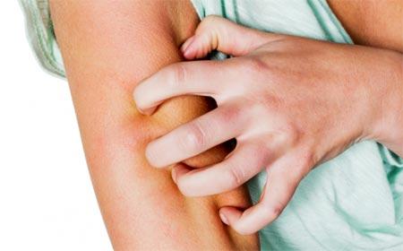 Признаки, симптомы и лечение чесотки в домашних условиях
