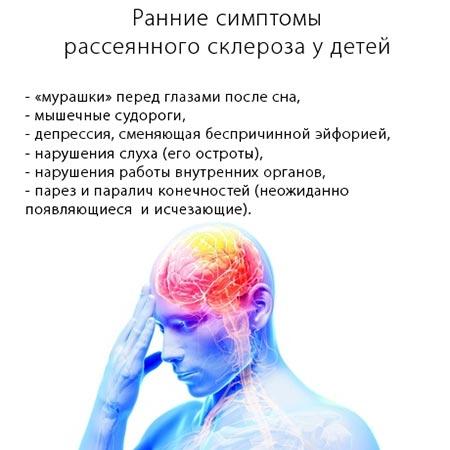 Ранние симптомы рассеянного склероза