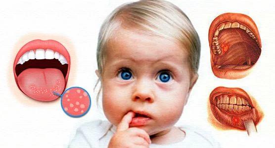 Стоматит у ребенка