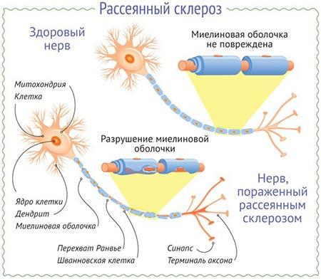 Развитие рассеянного склероза