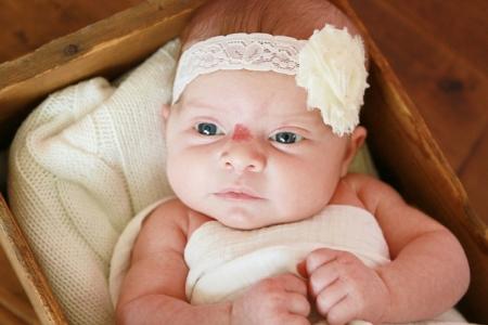 Гемангиома у ребенка на носу