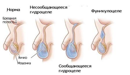Водянка яичка (гидроцеле)