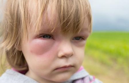 Отек Квинке у детей - симптомы: лечение и неотложная помощь