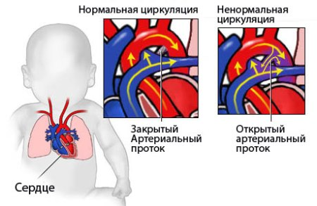 Врожденный порок сердца у новорожденных ⋆ Лечение Сердца