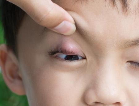 Симптомы ячменя у ребенка